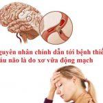Kiến Thức Quý Giá Ai Cũng Cần Biết Về Bệnh Thiếu Máu Não